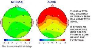 Neurofeedback ADHD