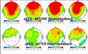 Neurofeedback Results